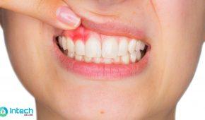 Cách điều trị bệnh răng miệng