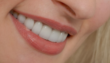 Cách khắc phục răng hô vẩu tốt nhất