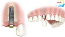 Cách trồng răng giả tiến hành như thế nào theo tiêu chuẩn Quốc tế