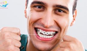 Cảm giác khi mới niềng răng sẽ như thế nào?