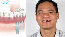 Cắm Implant cho răng cửa giá bao nhiêu và địa chỉ uy tín trồng răng implant tại Hà Nội