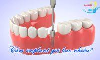 Bảng giá trồng răng implant năm 2019.
