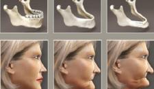 Các phương pháp cắm ghép implant cho người già