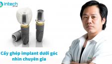 Thắc mắc về cấy ghép implant được giải đáp tất tần tật dưới góc nhìn chuyên gia