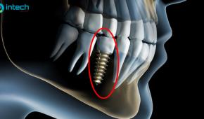 Cấy ghép implant ở đâu hiệu quả, an toàn nhất tại Hà Nội