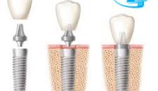 Cấy ghép mini implant