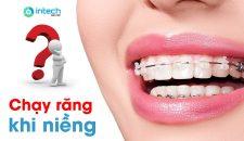 Chạy răng sau khi niềng là hiện tượng như thế nào?