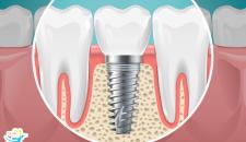 Chi phí cấy ghép implant hiện nay là bao nhiêu tiền?