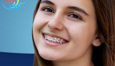 Niềng răng mắc cài kim loại – Hiệu quả tối ưu và tiết kiệm nhất