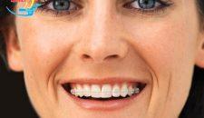 Tại sao niềng răng mắc cài sứ tự buộc lại được ưa chuộng?