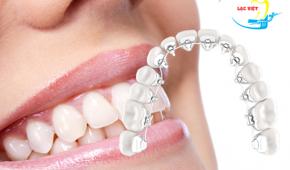 Niềng răng mặt lưỡi là gì và ưu nhược điểm của phương pháp này