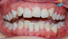 Chỉnh răng khấp khểnh bằng cách niềng răng, có nên không?