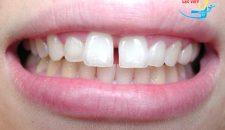 Chỉnh răng thưa ở đâu tốt và an toàn nhất tại Hà Nội?