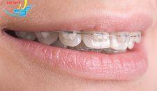 Chỉnh răng hô ở Hà Nội