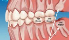 Có nên nhổ răng số 8 không?