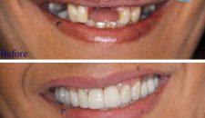 Có nên trồng răng giả không?
