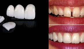 Tìm hiểu công nghệ dán răng sứ không mài răng