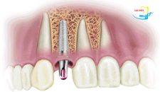 Công nghệ trồng răng Implant giải pháp hoàn hảo cho hàm răng đẹp!