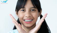 Nhật ký niềng răng – Những dấu hiệu khi mới niềng răng bạn sẽ trải qua