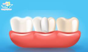 Dán răng sứ có hại không? Có thực sự tốt như quảng cáo