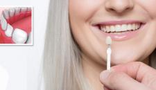 Dán răng sứ có bền không? Liệu có ảnh hưởng đến răng thật?