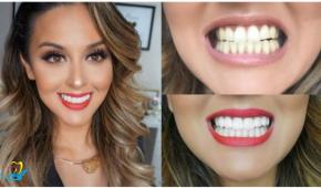 Nha khoa nào làm răng sứ tốt, uy tín tại Hà Nội
