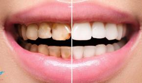 Dán răng sứ được bao lâu phải thay lại?