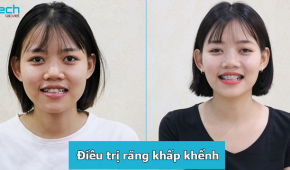 Địa chỉ niềng răng khấp khểnh uy tín tại Hà Nội, cập nhập bảng giá niềng răng 2019