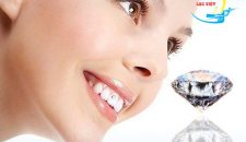 Dịch vụ Đính kim cương vào răng và những thông tin cần biết