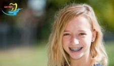 Độ tuổi niềng răng nào hợp lý nhất để đạt kết quả nhanh chóng?