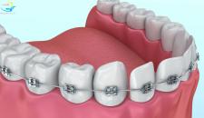 Niềng răng giai đoạn nào đau nhất? Chuyên gia bật mí cách khắc phục tình trạng đau