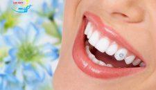 Gắn đá vào răng giá bao nhiêu- Bảng giá gắn đá vào răng rẻ nhất 2017