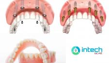 Giá làm răng giả nguyên hàm mới nhất