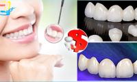 Giá trồng răng sứ vĩnh viễn bao nhiêu tiền?
