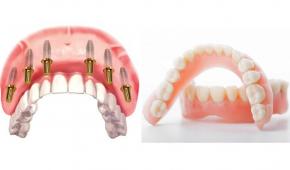 Trồng cả hàm răng giả giá bao nhiêu?