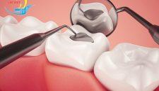 Hàn răng sâu có đau không và hàn răng ở đâu uy tín?