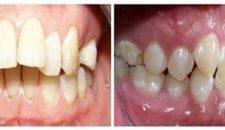 Niềng 4 răng cửa mất thời gian bao lâu và giá bao nhiêu?