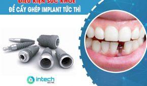 Điều kiện sức khỏe để cấy ghép implant tức thì