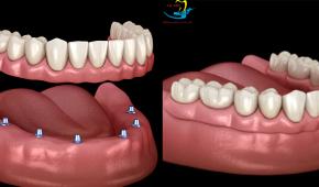 Cấy ghép implant toàn hàm – giải pháp hoàn hảo nhất cho người mất răng