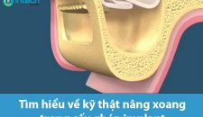 Tìm hiểu về kỹ thuật nâng xoang trong cấy ghép Implant