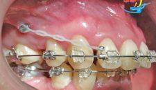 Kẹp răng vẩu và những ưu nhược điểm cần phải biết