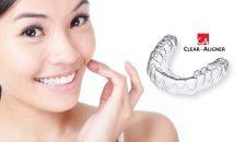 Tại sao niềng răng không mắc cài Clear Aligner được ưa chuộng?