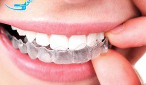 Ưu nhược điểm của khay niềng răng Invisalign trong suốt