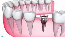 Giá trồng răng hàm dưới bao nhiêu và những điểm cần lưu ý