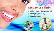 Khuyến mại bọc răng sứ tại Hà Nội