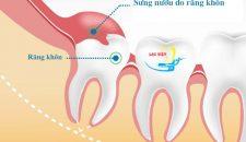 Không nhổ răng khôn mọc lệch liệu có ảnh hưởng tới sức khỏe không?