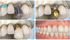 Kỹ thuật trồng răng implant theo đúng tiêu chuẩn quốc tế