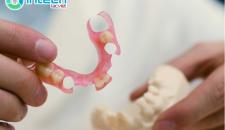 Làm răng giả nguyên hàm tháo lắp
