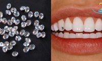 Đính đá vào răng có đau không và những tiêu chí ảnh hưởng