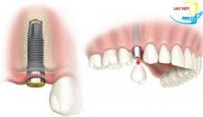 Một số lưu ý khi trồng răng Implant